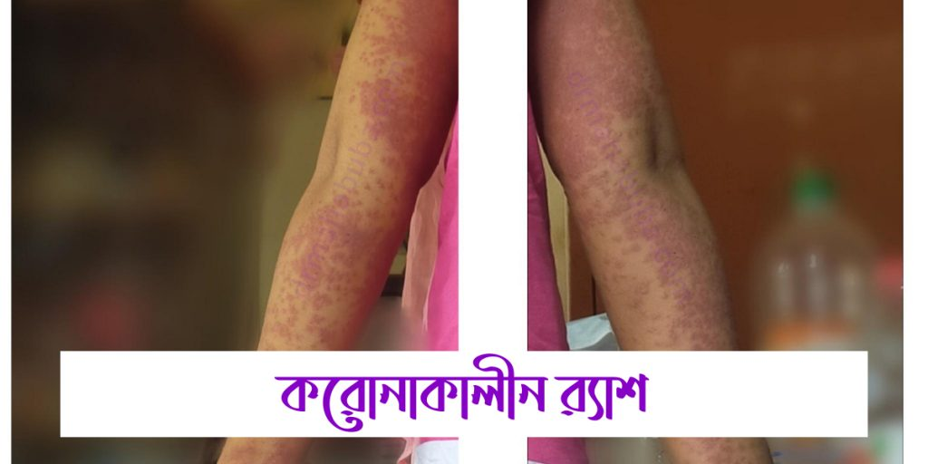 rash in patient's body during covid 19